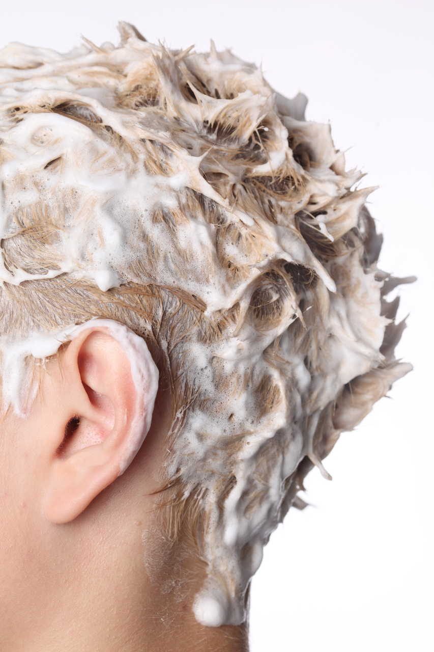 how to clear up dandruff