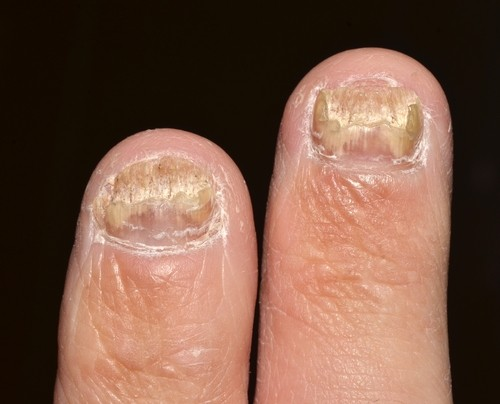 Nail abnormalities: MedlinePlus Medical Encyclopedia