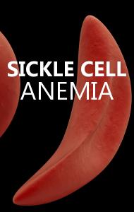 "Dr Oz: T-L-C's ""T-Boz"" Brain Tumor & What is Sickle Cell Anemia?"