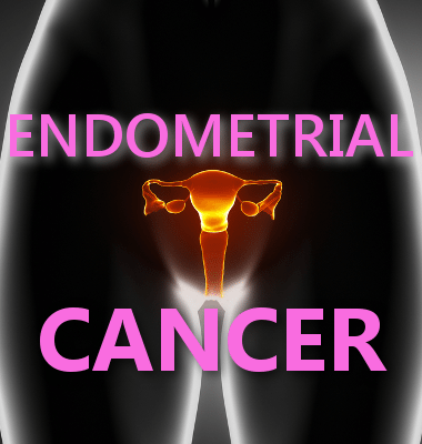 Dr Oz: Endometrial Cancer Warning Signs + Camille Grammer Hysterectomy