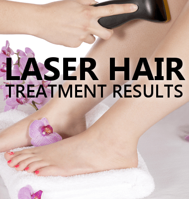 Dr Oz: Laser Hair Treatment Review for Body Hair & Procedure Results