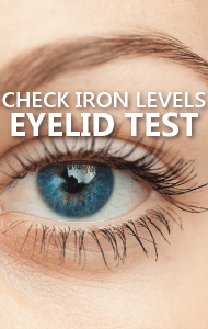Dr Oz: Eyelid Iron Deficiency Test & Healthy Philly Cheesesteak Recipe