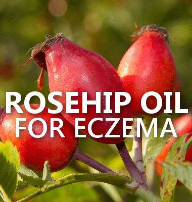 Dr Oz: Rosehip Oil Eczema Treatment & Best Butt-Firming Exercises