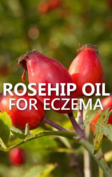 Rosehip Oil: Dr Oz: Rosehip Oil Eczema Treatment & Best Butt-Firming