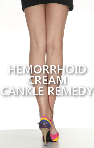 hemorrhoid treatment with steroids