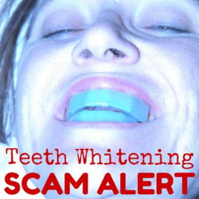 teeth-whitening-scam-