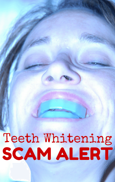 What You Need to Know About Teeth Whitening Scams & Dental Health