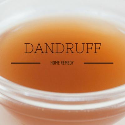 dandruff-home-
