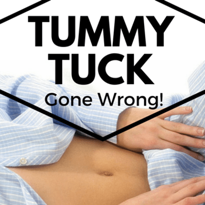 Dr Oz: Botched Tummy Tuck + Dr Miami Snapchats Plastic Surgery