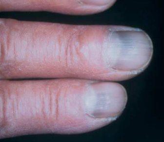 15 Health WARNINGS Your Fingernails Are Sending