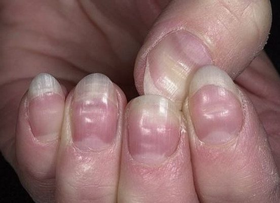 Horizontal Grooves or Ridges in Nails