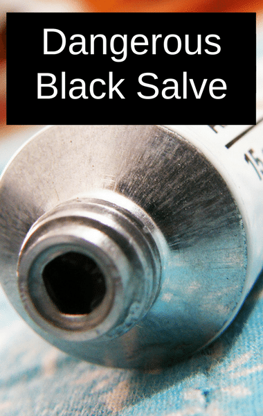 "Dr Oz: Black Salve, Cansema + Dangerous At-Home Cancer ""Cure"""