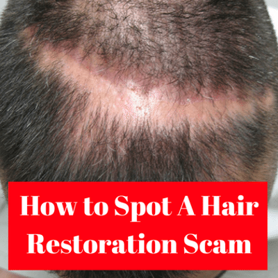 Dr Oz: How To Find a Good Hair Restoration Clinic & Avoid Scams